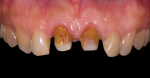 Fig 3. Teeth undergo preparation.