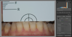 Fig 4. A photograph of teeth Nos. 22 through 27 is taken according to eLAB protocol.