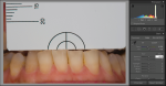 Fig 9. The Digital Color Meter software records the L*a*b* values of the cervical areas of tooth No. 24.