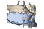 Fig 4. Note the denture-to-friction-fit-cap relationship and nonparallel implants in the maxilla compared to the parallel placement in the mandible.
