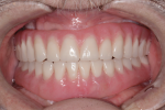 Fig 12. Note the final intraoral view of prosthetics.