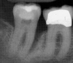 Figure 2  Pretreatment radiograph of tooth No. 31 showing an 11-mm defect on the mesial-lingual aspect.