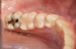 Figure 3  Teeth after gross placement and curing of composite material.