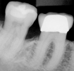 Figure 3  Posttreatment radiograph of tooth No. 31 showing the mesial bone fill.