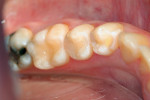 Figure 6  The final restorations in Clinical Example 1.