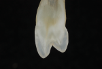 Fig 1a. As seen in cross-sections of teeth, maintaining a true cusp-to-fossa relationship is not always the norm.