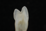 Fig 1b. As seen in cross-sections of teeth, maintaining a true cusp-to-fossa relationship is not always the norm.