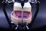 Fig 7. With conventional workflow, the occlusal rim records and master casts are mounted on a dental articulator for designing maxillary and mandibular tooth arrangement and occlusal scheme.