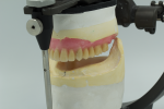 Fig 8. With a conventional workflow, you can visualize the interresidual or prosthetic space from the facial, buccal, posterior or lingual, and occlusal views. The digital workflow allows visualization in perspectives that we could never see before. We can now look through the superior or inferior of articulator and model base to see the relationship of ridge, intaglio, and occlusion.