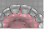 Fig 11. In the digital workflow, anterior and posterior teeth can be analyzed utilizing a reference grid for measuring facial surface of teeth to incisive papillae. The smile line, midline, incisal edge position, and buccal corridor are also analyzed with a 1-mm grid overlay.