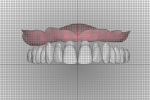 Fig 12. In the digital workflow, anterior and posterior teeth can be analyzed utilizing a reference grid for measuring facial surface of teeth to incisive papillae. The smile line, midline, incisal edge position, and buccal corridor are also analyzed with a 1-mm grid overlay.