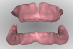 Fig 13. With a digital design workflow, the inter-arch ridge relationship can be analyzed from a facial/labial and posterior perspective while manipulating the size and position with a mouse.