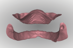 Fig 14. With a digital design workflow, the inter-arch ridge relationship can be analyzed from a facial/labial and posterior perspective while manipulating the size and position with a mouse.