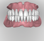 Fig 15. After the ridge is analyzed denture teeth are digitally arranged according to reference record as in Figure 10. With a digital workflow all the anterior teeth are set at once followed by all posteriors on the arch. Tooth arrangement and occlusion can be viewed in all possible perspectives in relation to residual ridges.
