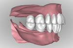 Fig 16. After the ridge is analyzed denture teeth are digitally arranged according to reference record as in Figure 10. With a digital workflow all the anterior teeth are set at once followed by all posteriors on the arch. Tooth arrangement and occlusion can be viewed in all possible perspectives in relation to residual ridges.