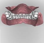 Fig 17. After the ridge is analyzed denture teeth are digitally arranged according to reference record as in Figure 10. With a digital workflow all the anterior teeth are set at once followed by all posteriors on the arch. Tooth arrangement and occlusion can be viewed in all possible perspectives in relation to residual ridges.