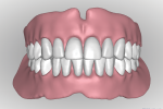 Fig 19. The completed digital design of teeth and gingival base is viewed from the facial perspective.