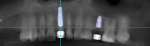 Fig 6. The reconstructed panoramic CBCT scan from the DICOM files.