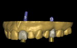 Fig 7. An STL model obtained from an intraoral scan shows digital teeth placed to ensure the implants are virtually planned in an ideal restorative position.