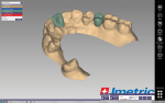 Fig 10. The laboratory digitally designs custom abutments.