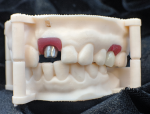 Fig 12. The custom abutments are evaluated on a 3D-printed analog model.