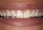 Figure 1  Preoperative full smile demonstrating excessive gingival display, short uneven length, and negative space in the buccal corridor.