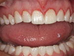 Figure 2  Postoperative photograph 1 month after completing the gingivectomy.