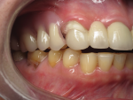 Fig 1. Completely transparent traditional denture material may not provide desirable esthetics.
