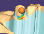 Fig 3. In undercut mapping, exocad shows the lightest undercut in blue, then moves to green, yellow, orange, and finally red, the most extreme.