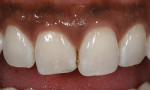 Figure  1  CLINICAL EXAMPLES Excessive incisal wear was evident on the right central incisor.