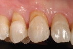 Figure  3  CLINICAL EXAMPLES Root decay and moderate gingival recession was present along the premolar and cuspid teeth.