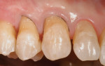 Figure  5  CLINICAL EXAMPLES The tooth was isolated with a small-diameter retraction cord and a resin-modified glass ionomer was placed as an initial layer.