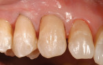 Figure  7  CLINICAL EXAMPLES An enamel shade was sculpted and blended to the tooth for a natural, layered appearance.
