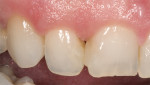 Figure  9  CLINICAL EXAMPLES Failing existing composite resin restorations on the right central and lateral incisor due to recurrent decay. (