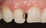Figure  10  CLINICAL EXAMPLES Tooth preparation was done after removal of the existing composite resin and recurrent decay.