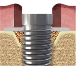 Fig 2. Bone graft material is placed within the infrabony defect and a collagen membrane covers the graft.