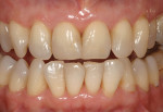 Figure  12  CLINICAL EXAMPLES Esthetic restorative correction was wanted on both central incisors.