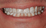 Facial view of patient's smile showing severe wear.
