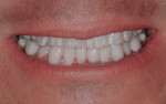 Patient's smile with final mandibular restorations in place.