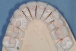 Occlusal view of final maxillary pressable ceramic restorations.