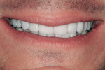 Unretracted facial view demonstrating improved coloration and condition of the worn dentition.