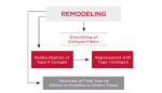 Figure  4  REMODELING  Sequences of the Remodeling Phase.