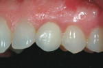 Figure  19  CLINICAL PRESENTATION The final restoration in place. Note the height discrepancy of the facial-gingival margin compared with tooth No. 11. However, gingival contours have remained stable at 24 months.