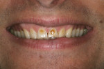 Figure  1  CLINICAL EXAMPLE  Preoperative view showing erosion and severe discoloration of teeth Nos. 7 through 10 and a high smile line that were esthetically dissatisfying for the patient.