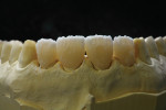 Figure  13  CLINICAL EXAMPLE   A thin wash of Dentin A-2 was placed at the cervical area of the crowns to ensure an even tone of color when staining and glazing the crowns.