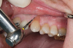 Figure  9  Shaping the restoration, making sure to not over-reduce the composite, which would create a deficiency with the free gingival margin.