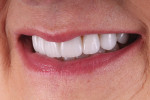 Fig 10. Left lateral final smile photograph.