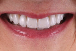 Fig 9. Anterior final smile photograph.