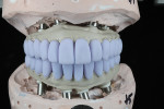 Fig 3. Lithium-disilicate crowns in blue phase. Crowns were designed in CAD software and milled on the Versamill 5XS.