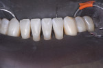 Thoroughly cleaned and pristine teeth, ready for etching.